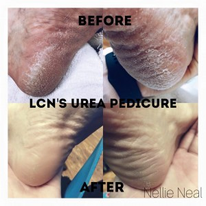 LCN Urea before and after