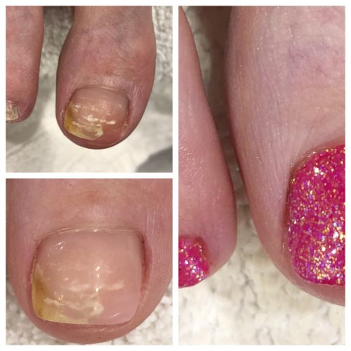 Barefoot toenail restoration